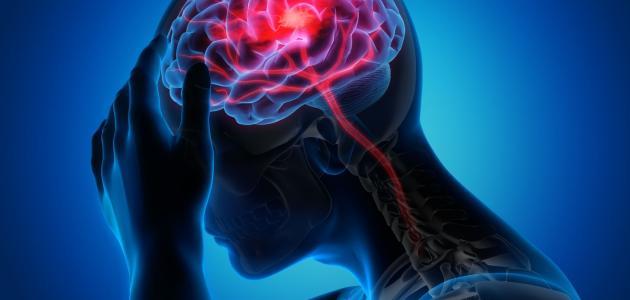 أسباب-السكتة-الدماغية-وأعراضها/