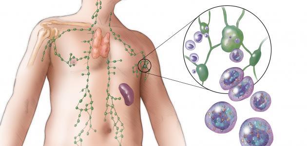 أسباب التهاب الغدد الليمفاوية 1