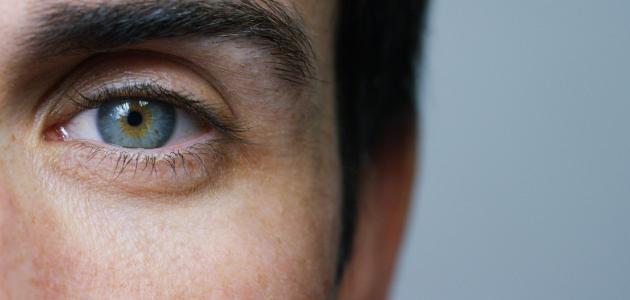 أضرار-اللحام-على-صحة-العين/