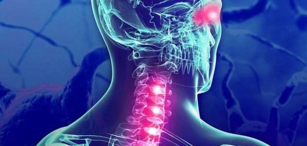 علاج التصلب اللويحي بالأعشاب: حقيقة أم خرافة قد تضرك؟