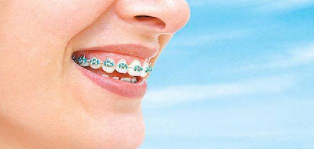 كيفية التخلص من الرائحة الناتجة عن جسر الأسنان