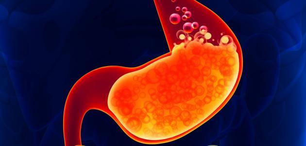 أعراض حموضة المعدة