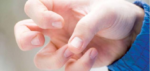الإسعافات الأولية لمرض الصرع