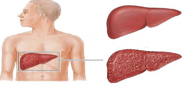 التهاب-الكبد-الوبائي-B/