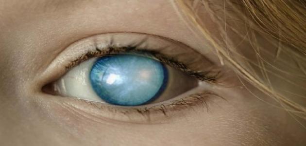 علاج المياه البيضاء في العين بالأعشاب