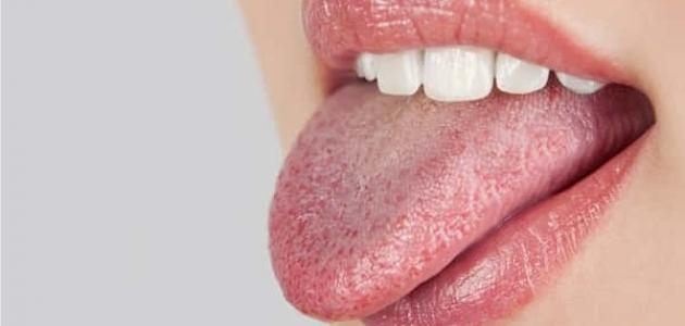 معلومات عن التهاب اللسان