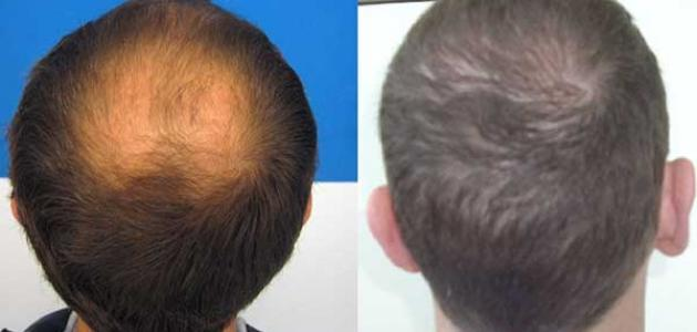 كيفية زراعة الشعر