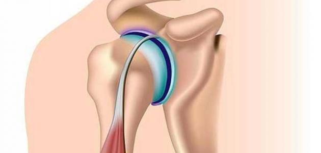 أسباب التهاب أربطة العضلات