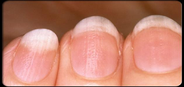 ما هي أمراض الأظافر وعلاجها