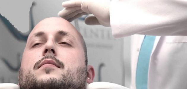 التقنيات المستخدمة في زراعة الشعر