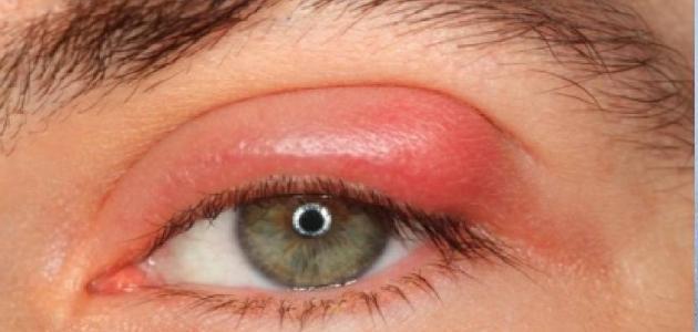 أنواع دمامل العين