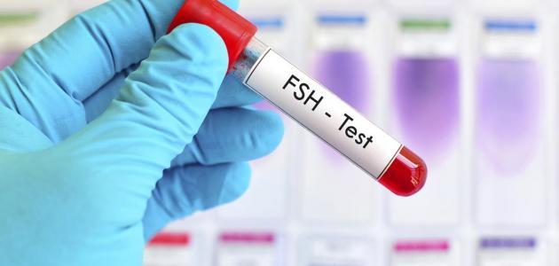 ما هو تحليل fsh للنساء