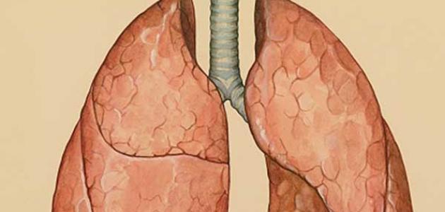 أعراض مرض ذات الجنب