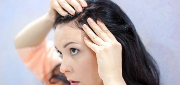 طريقة صباغة الشعر الأبيض