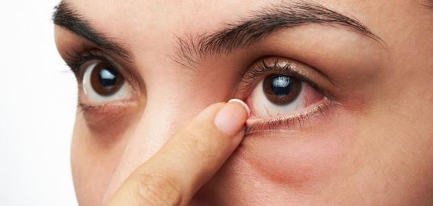أسباب وأعراض رفرفة العين