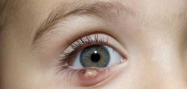 طرق علاج قرحة العين