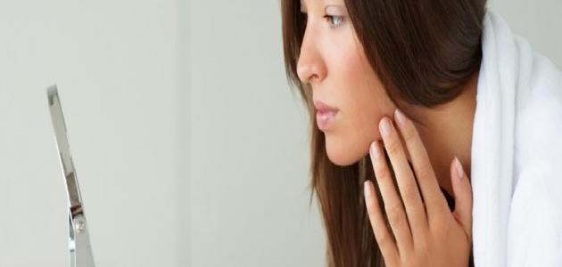 أسباب متلازمة فرط الشعر
