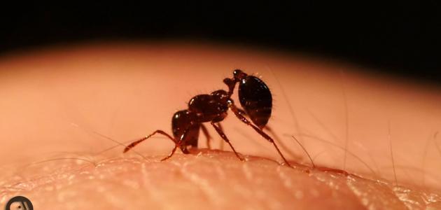 علاج قرصة النمل سطور