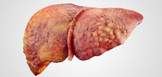 أعراض ارتفاع إنزيمات الكبد