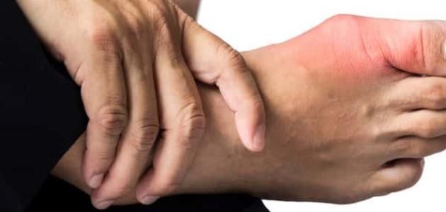 علاج مرض النقرس