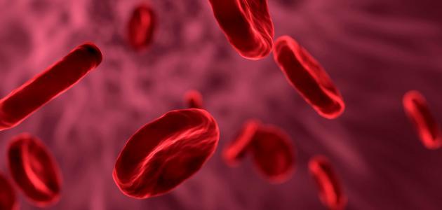 أعراض سرطان الدم عند النساء