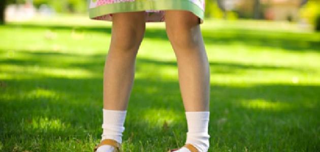 علاج تقوس الساقين بالأعشاب: حقيقة أم خرافة قد تضرك؟
