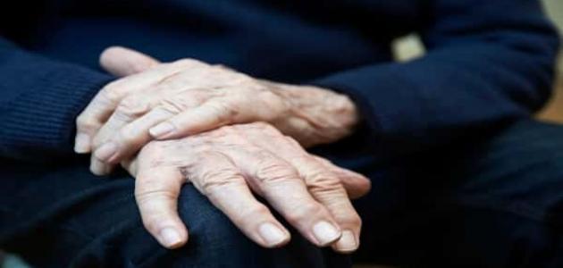 علاج الشلل الرعاش بالحجامة