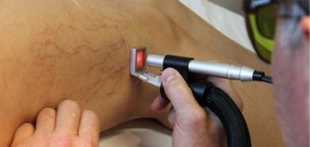 علاج الدوالي بالليزر