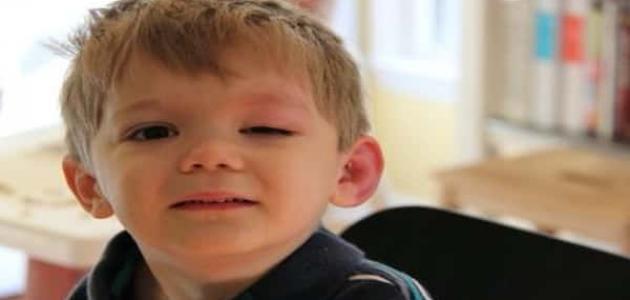 انتفاخ جفن العين العلوي عند الأطفال