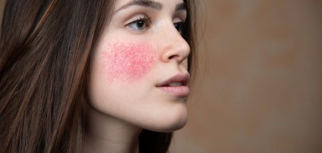 علاج مرض الوردية