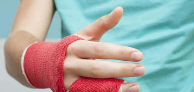 أعراض كسر الأصبع