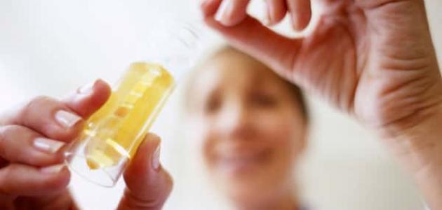 علاج صديد البول عند الأطفال