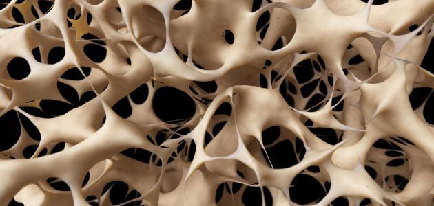 أسباب-هشاشة-العظام/