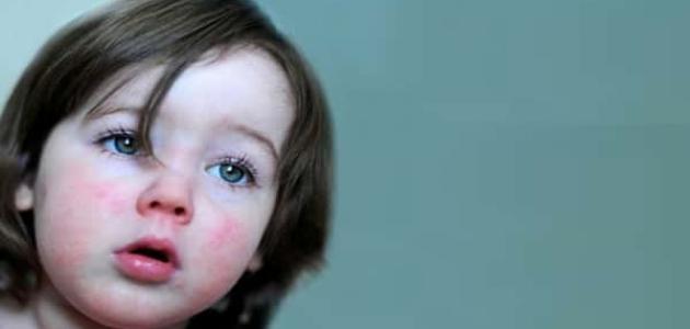 معلومات عن حساسية الشرى عند الأطفال