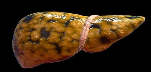 أعراض مرض الكبد الدهني