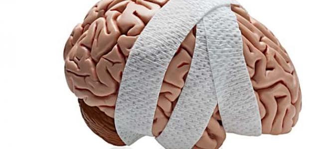 أعراض تلف خلايا المخ
