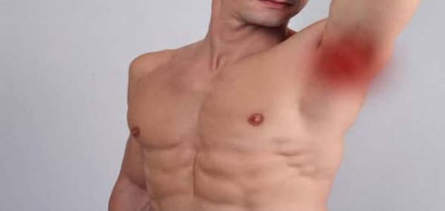 التهاب الغدد اللمفاوية في الابط 4