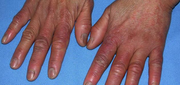 علاج تورم الأصبع