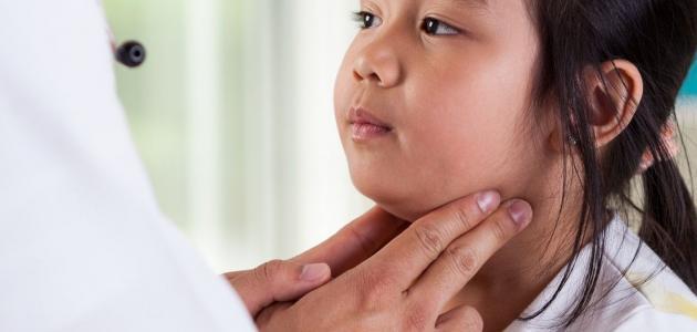 ما هو مرض أبو دغيم