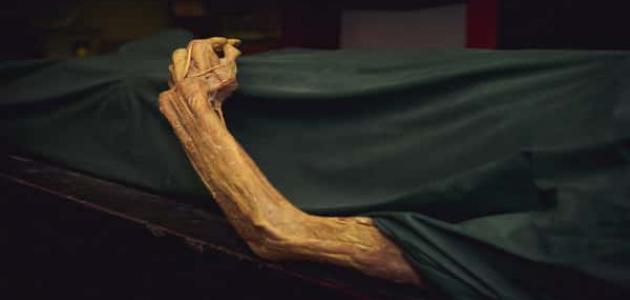 مراحل تحلل الجثة