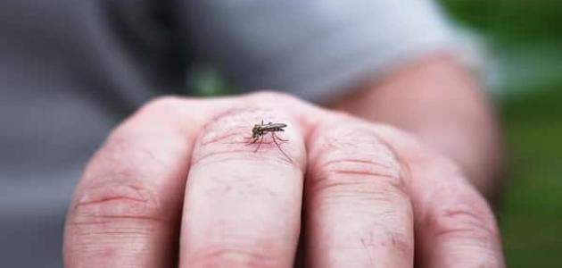 علاج منزلي للدغ الحشرات
