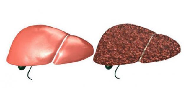 أعراض التهاب الكبد