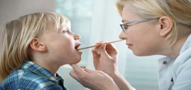 كيفية علاج اللوز عند الأطفال