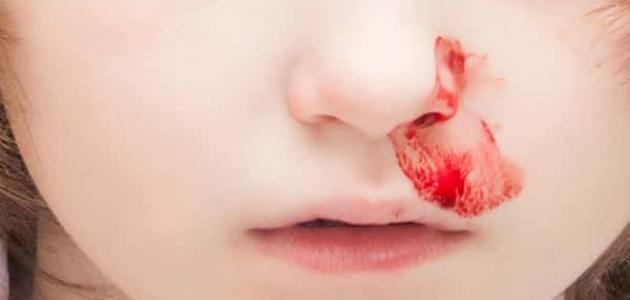 سبب نزول الدم من الأنف