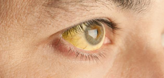 معلومات عن مرض اليرقان