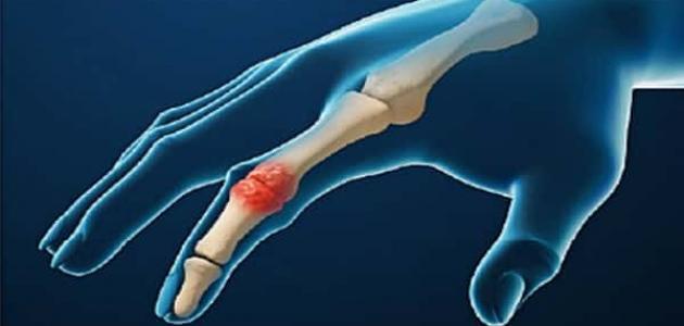 ما هو التهاب المفاصل الرثوي
