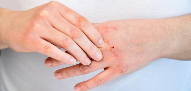 أعراض وأسباب التهاب الجلد