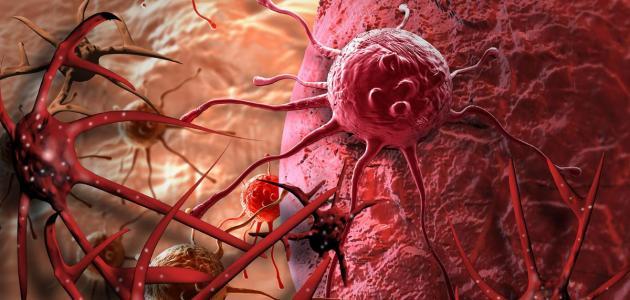 ما هي الخلايا السرطانية