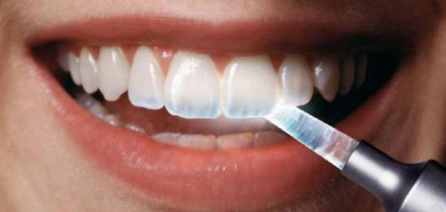 ضعف-طبقة-المينا-في-الأسنان-وطريقة-علاجها/
