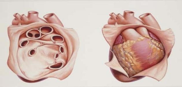 أعراض التهاب غشاء التامور